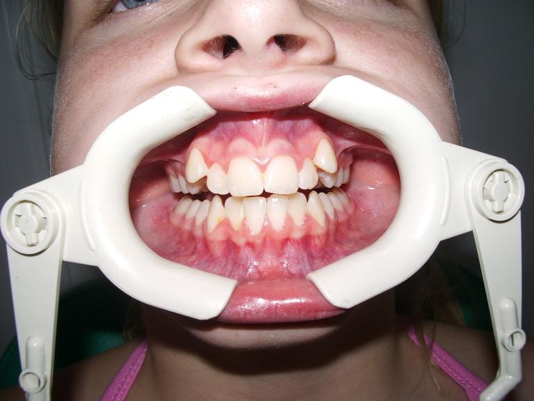 Ортодонтия: до лечения №1