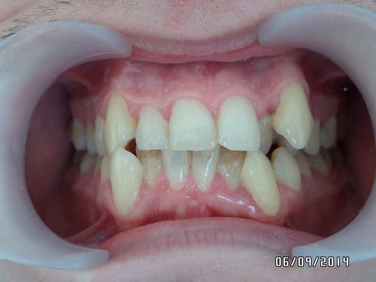 Ортодонтия: до лечения №2